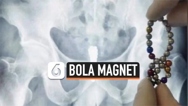 Dokter Temukan 28 Bola Magnet Dalam Kandung Kemih Pria
