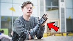 5 Manusia Setengah Robot yang HIDUP di Dunia Nyata