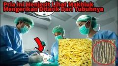 Dikira Mie, Dokter Terkejut Saat Ditarik dari perut Ternyata Hewan Ini